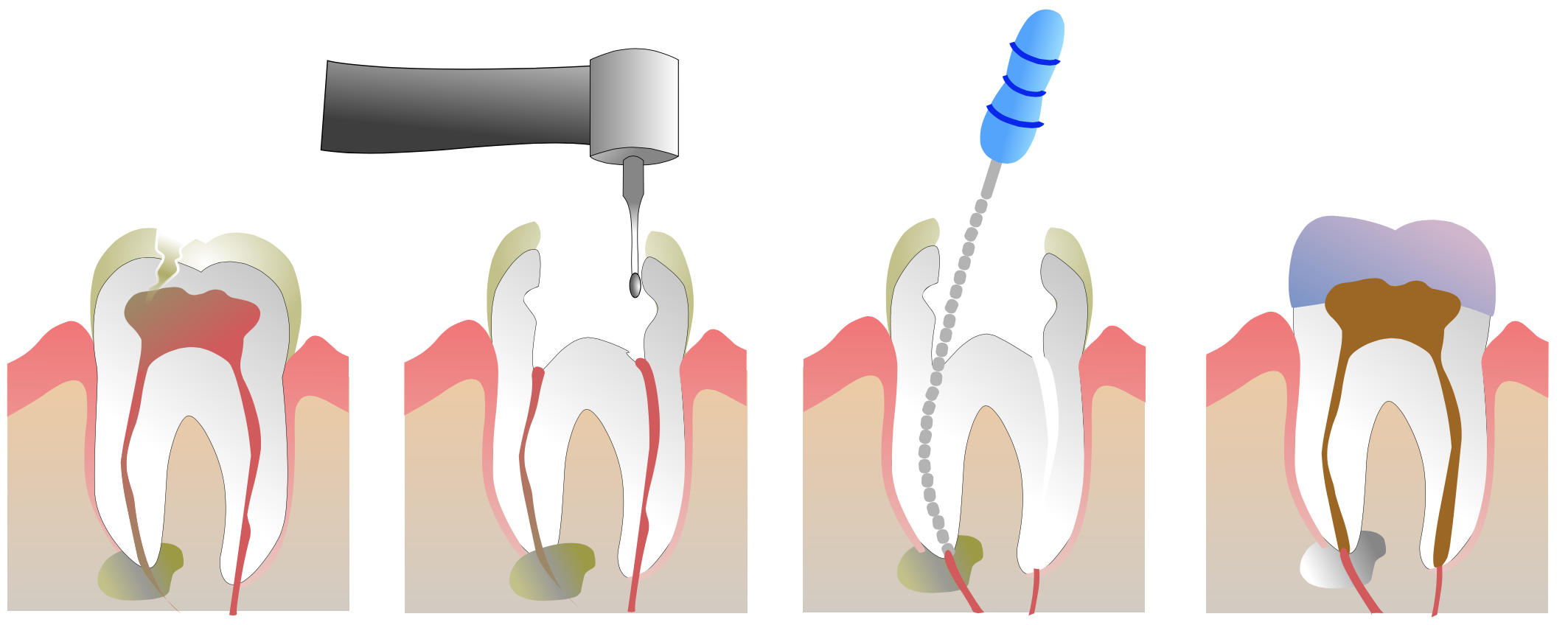 Root canal treatment at White Smile Dental